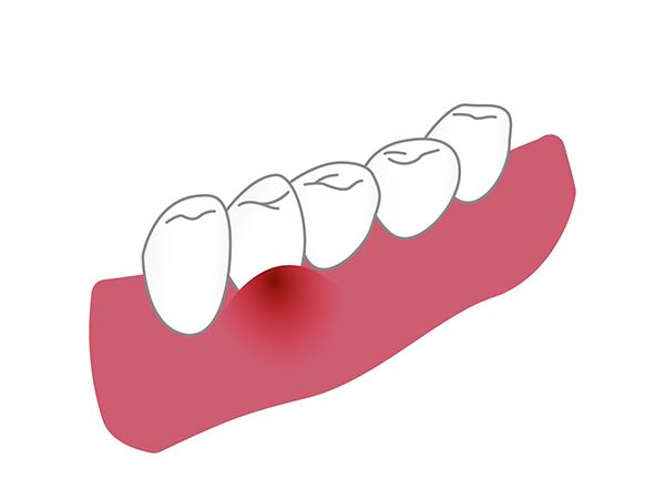 歯肉炎による腫れ