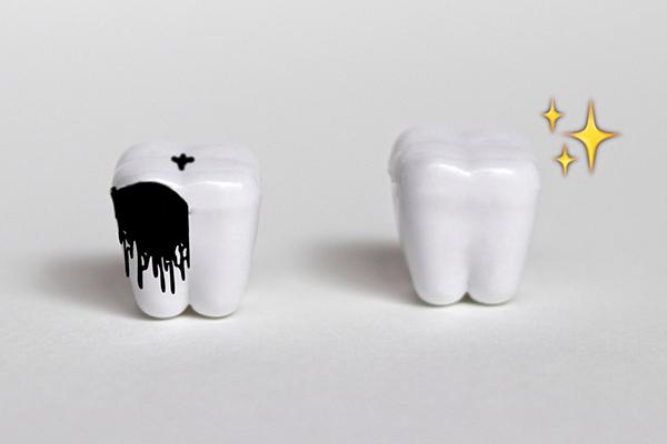 歯みがきビフォーアフター