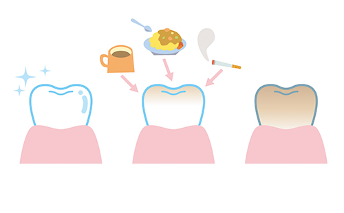 歯の表面にコーヒーやタバコがこびりつく