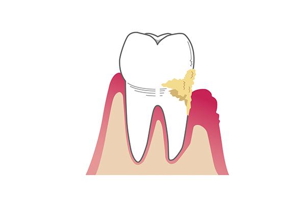 歯の溝に溜まった有害物質