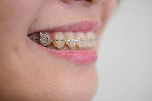 悪い歯並びを矯正した状態