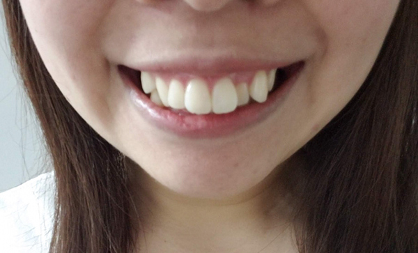 歯並びの悪い女性
