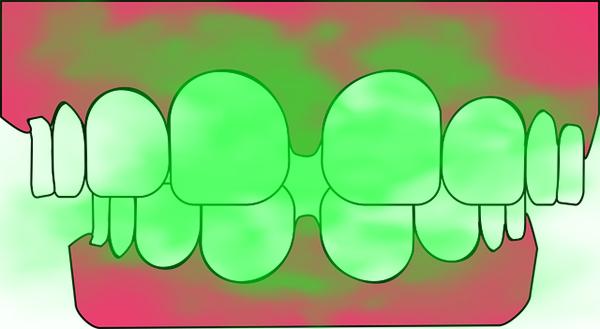 歯茎から口臭が漂うイラスト